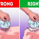 Best Home Remedies To Heal Wound Fast